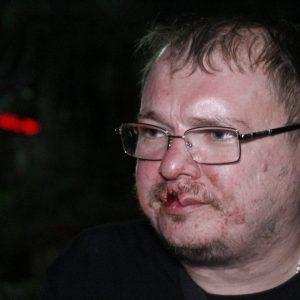 Максим Федин из России был избит на Walking Street, потому что не хотел покупать марихуану