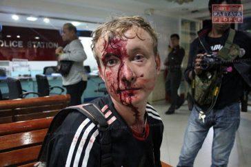 Ледибой в Паттайе порезал русского гида
