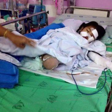 Маленькая девочка потеряла ногу в страшной аварии в Паттайе