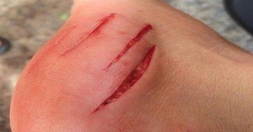 В Таиланде акула укусила туриста