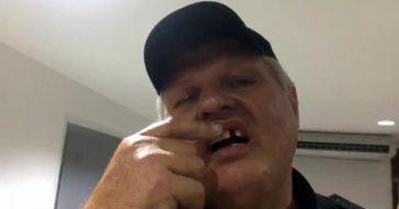 Волонтеру полиции из России выбили зуб в Паттайе