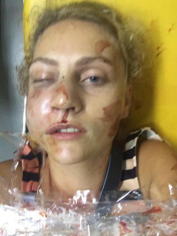 Избитая в Таиланде россиянка просит помощи