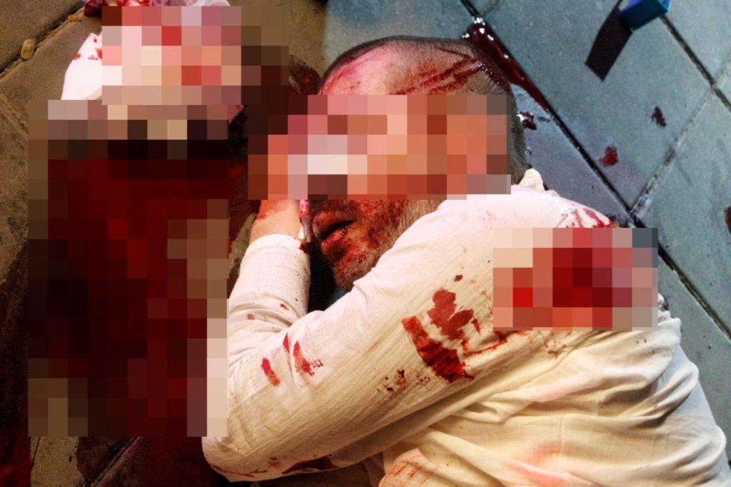 В Паттайе избили туриста из России