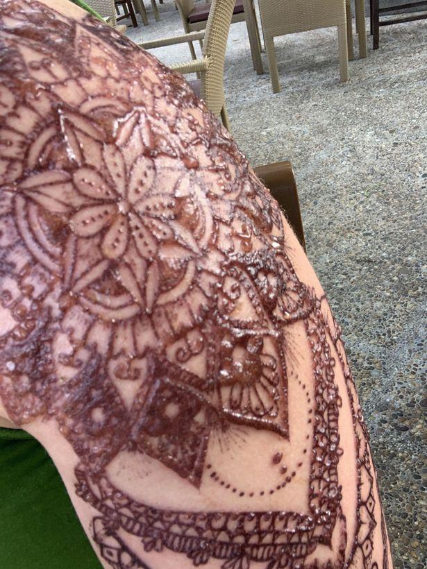 Туристка в Таиланде получила химический ожог с волдырями, сделав татуировку хной